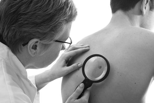 סרטן העור BCC
